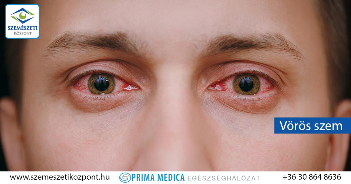 Vörös szem - mikor kell szemészhez fordulni?