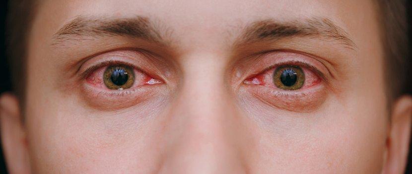 vörös szem látás