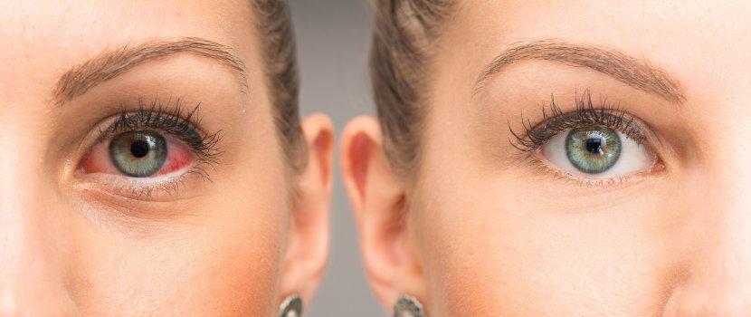 Zöldhályog, glaukóma tünetei, kezelése