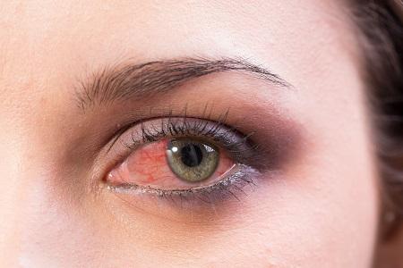homályos látás vörös szemek